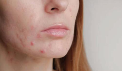 grossesse et acné